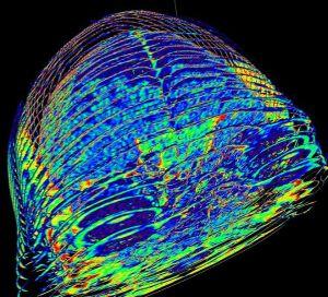 659px-CT_Scan_of_Dale_Mahalko's_brain-skull