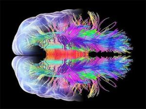 fMRI_Scan_Wide