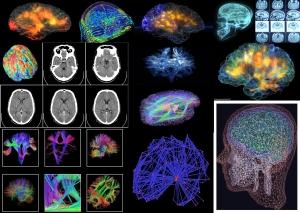 human_brain3